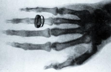 ' X-Ray ' ' Xray ' ' X-Ray of hand ' ' X-Ray of fingures 'X-Ray